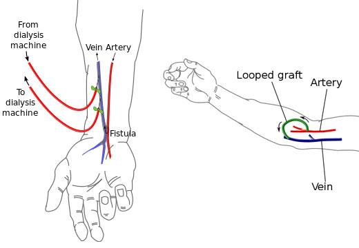 Av Fistula Radiocephalic AV  arteriovenous  fistulas